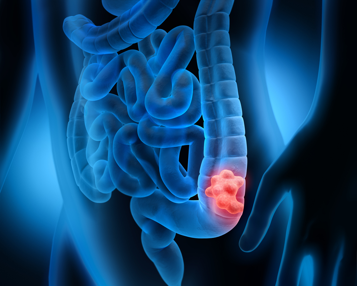 colorectal cancer image, tumor in colon 3D image